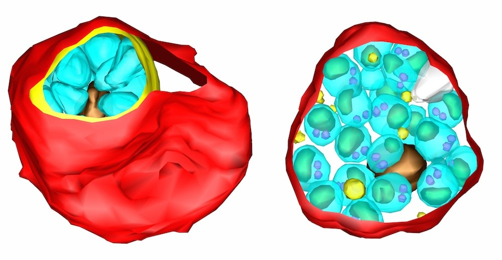 Malaria parasites inside red blood cells, showing the way they emerge from the cell. 